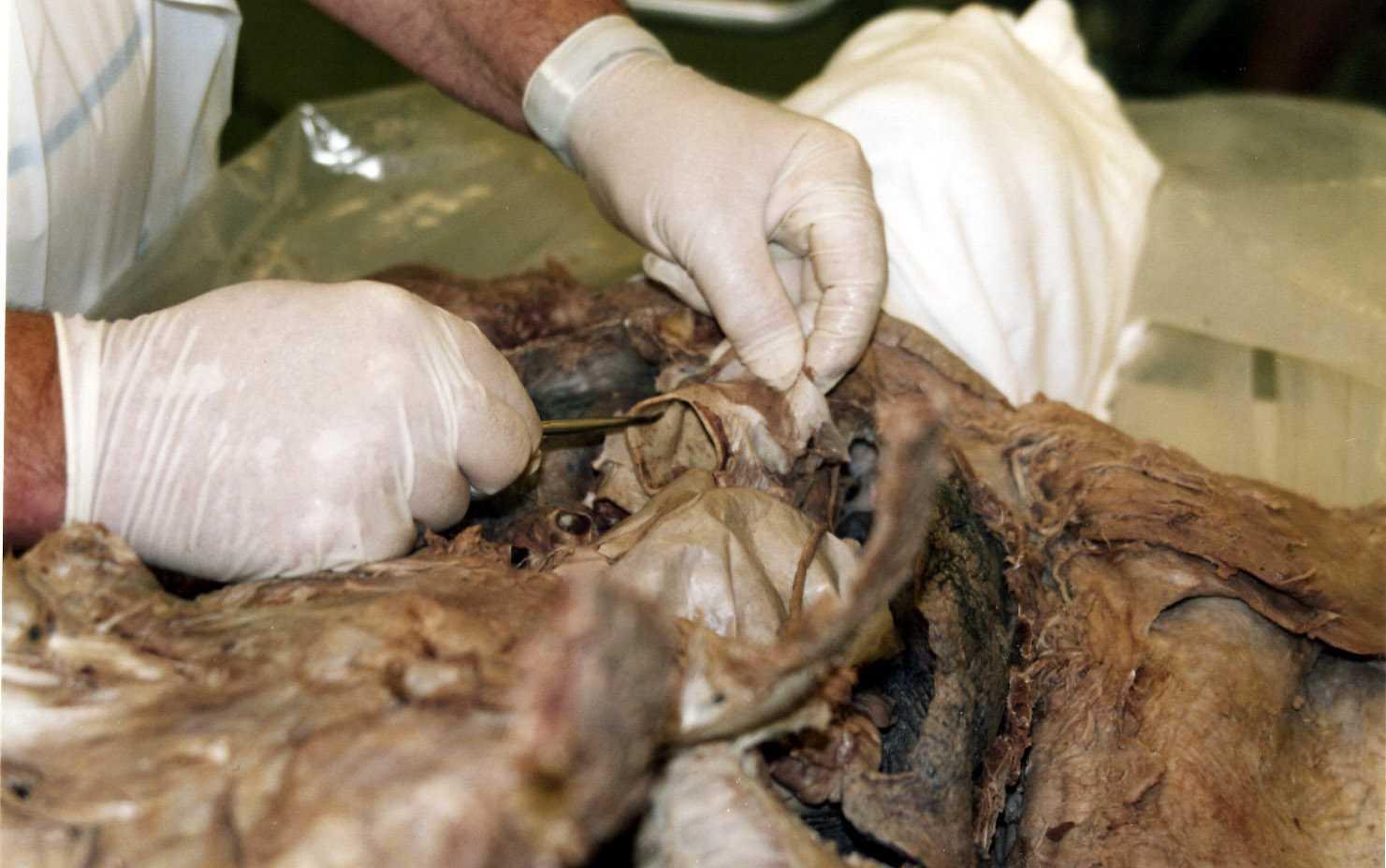 Aorta anatomy